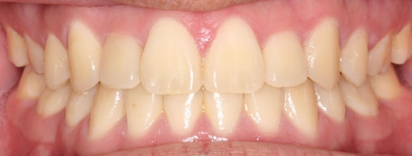 Perfectly Aligned Teeth, Dentist in Stamford, CT